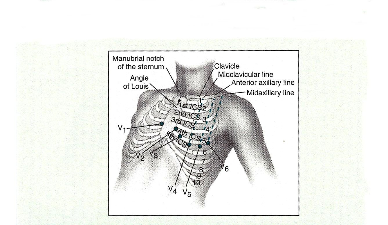 12 Lead Ecg Placement Chart