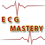ECG Tips | Left Bundle Branch Block